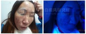 """【NO.9321病例】化妆品竟成""""毁容品"""",满脸""""疯长""""白癜风"""